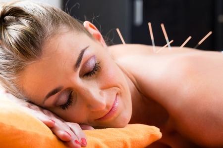 Acupuncture  3.jpg